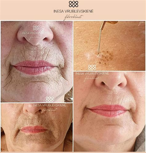 Latest Clients Before and After Plasma Pen – Starlite Smile