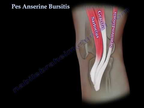 Foot Levelers Education Resource Center   Pes Anserine